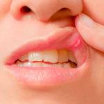 Uma lesão benigna na boca desaparece, geralmente, em 15 dias.  As que não desaparecem, não doem e não melhoram podem ser câncer.